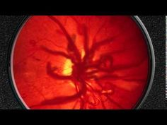 7782ce7b2e Davis Vision - Diabetes is the leading cause of new blindness cases among  adults aged 20