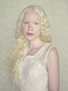 Brazilian photographer Gustavo Lacerda wanted to give albino people the chance to feel their importance, so over three years, he found people to photograph for his series, Albinos. Albinism had always aroused Lacerda's attention, and he chose the posing portrait as a way to put his subjects in the forefront, which he says was 'a […]