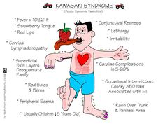 Nursing Mnemonics and Tips: Kawasaki Disease