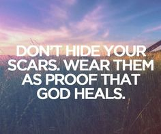 I can't hide my scars. I wear my scars as proof that God loves me. My scars are my badge of honor. Amen!
