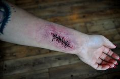 charakteryzacja rany - Szukaj w Google
