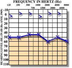 Audiology Awareness Campaign: audiogram of conductive hearing loss