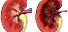 ارتفاع  ضغط الدم الكلي