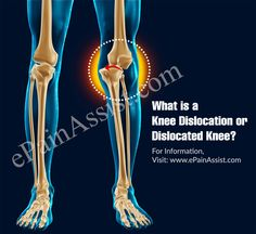 717b99041a Knee Dislocation or Dislocated Knee