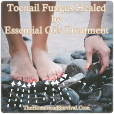 """Toenail Fungus Healed by Essential Oils Treatment – Healing Homesteading – The … – """".Designed To Deal With Even The Nastiest Toe & Nail Fungus"""" Toe Fungus, Toenail Fungus Remedies, Fungus Toenails, Skin Fungus Treatment, Antifungal Nail Treatment, Sleep Apnea, Mushrooms"""