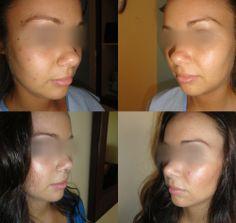 Before/After for Rhinoplasty Rhinoplasty, Hoop Earrings, Earrings