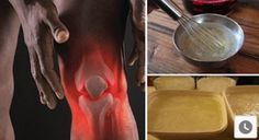 These are some of the best internal and topically applied home remedies for knee pain. Whether your pain is associated with arthritis or injury, let me introduce Natural Cures, Natural Healing, Natural Treatments, Health Remedies, Home Remedies, Bone And Joint, Hygiene, Knee Pain, Natural Medicine