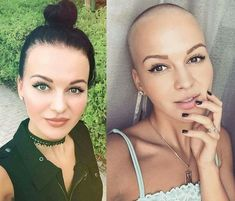 There is Somthing special about women with Short hair styles. I'm a big fan of Pixie cuts and buzzed. Bald Head Women, Shaved Head Women, Girls With Shaved Heads, Hair Loss Women, Very Short Hair, Short Hair Cuts, Short Hair Styles, Short Pixie, Before After Hair