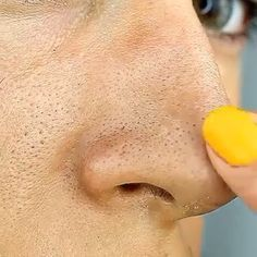 Get rid of blackheads with Eggs! By skin face skin no makeup skin requires commitment skin secrets skin tips Face Mask For Blackheads, Get Rid Of Blackheads, Remedies For Blackheads, How To Remove Blackheads, Clear Blackheads, Blackhead Remedies, Beauty Tips For Glowing Skin, Beauty Skin, Homemade Face Masks