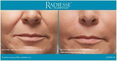 Radiesse gives you the lift you're looking for! #radiesse #medicalspa #aesthetics