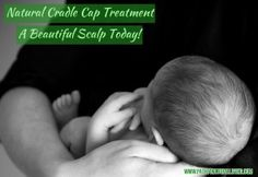 Naturally, painlessly and easily remove your babies cradle cap. With this quick and natural cradle cap treatment, babies hair will be beautiful again.