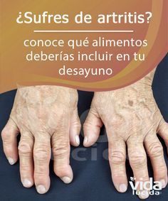 gastritis treatments all-natural remedies, Signs & Signs and symptoms and also exactly how to get over normally and also properly Herbal Remedies, Health Remedies, Natural Remedies For Arthritis, Natural Sleep Remedies, Good Day Quotes, Natural Medicine, Health And Beauty, Health Tips, Arthritis