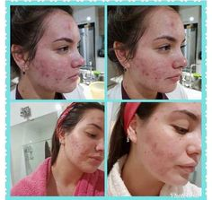 LumiSpa results Facebook O, Nu Skin, How To Make Money, Skin Care, Healthy, Products, Wellness, Health, Beauty