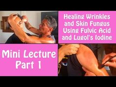 Healing Wrinkles and Skin Fungus Using Fulvic Acid and Lugol's Iodine Part 1 | Dr. Robert Cassar - YouTube