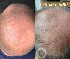 Und neue Haare werden gebildet. 8 Wochen #HairPlus und ein begeisterter Kunde schickt uns seinen Fortschritt. ▶️ Erlebe neue Haare! Medical, Blog, Beauty, Dry Scalp, Hair Roots, Wash Hair, Stop Hair Loss, Soft Hair, Drawing Hair