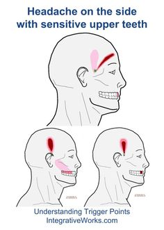 fi-headache-on-the-side-with-sensitive-upper-teeth