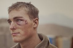 scars from an improvised explosive device (IED)
