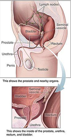 testosterone therapy and enlarged prostate)
