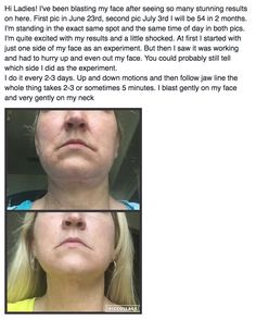 """Use the FasciaBlaster® to FIX your saggy, loose skin!!! Here's just ONE of the incredible things the FasciaBlaster® can do!  ➡ Look up my video """"How the FasciaBlaster® makes skin tighter and beautiful"""" on Youtube - I explain how the #FasciaBlaster® helps carry the blood supply to the skin which carries the necessary proteins to tighten and brighten skin! www.FasciaBlaster.com"""