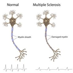 M.S. is a disease that causes your immune system to attack a material called myelin, that protects your nerve fibers. Without myelin, the nerves become damaged which prevents them from sending signals through your body correctly: http://wb.md/1HVt3eY