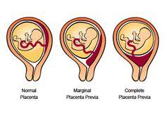 """¿Será? """"  ¿Quieres saber el sexo del bebé a la sexta semana?            tan sólo mira la placenta."""" http://www.placentera.com/1/post/2013/03/quieres-saber-el-sexo-del-beb-a-la-sexta-semana-tan-slo-mira-la-placenta.html"""