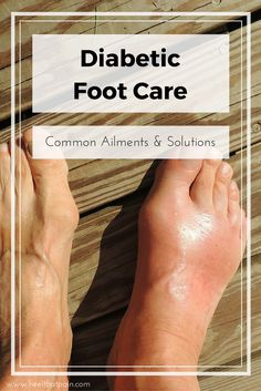 Diabetic foot care: People with diabetes are especially prone to foot and heel pain conditions like plantar fasciitis, neuropathy, and poor circulation. Click to learn more!