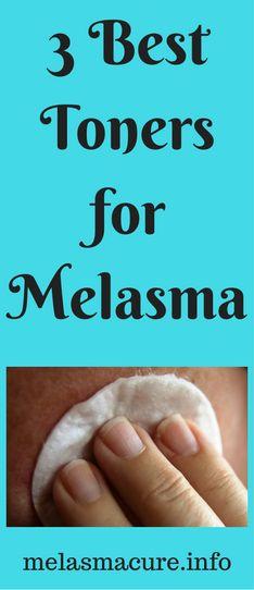 3 Best Toners for Melasma Treatment and Prevention – Melasma Cure Skin Treatments, Skincare For Oily Skin, Best Toner, Home Remedies For Skin, Skin Lightening Cream, Beauty Ideas, Beauty Tips, Kuchen, Beleza
