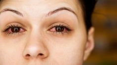 How To Get Rid Of Red And Bloodshot Eyes
