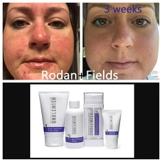 """You wonder why I LOVE my 'job'! I love hearing stories like this and how much one loves oneself again!! HAPPY DANCE!!! heart emoticon Check out Michelle's AMAZING results and what she has to say about UNBLEMISH ------->>> """"I have been using UNBLEMISH for only 3 weeks. I hate the before picture BUT the end results I have gotten are AMAZING! I can't even count the endless things I have tried to get rid of my adult acne. I have battled with acne for 2 years until now. The before picture doesn't..."""