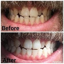 nu skin whitening toothpaste - Google Search Oral Health, Health Care, Whitening Fluoride Toothpaste, Skin Whitening, Ap 24, I Site, Anti Aging Skin Care, Nu Skin, Lips