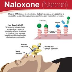 Nursing Pharmacology: Naloxone (Narcan)