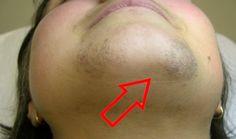 V tomto článku budeme uvažovat o lidových metodách depilace vousů doma, které…