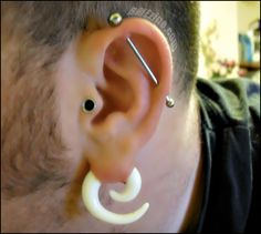 NEVER SEEN THIS BEFORE OMG Stretched transverse lobe had to pin never seen this before