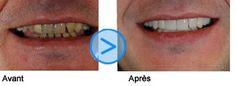 Facette dentaire tunisie avant et après