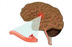 Udar krwotoczny mózgu