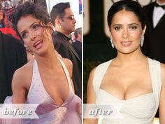 Think celebrities are perfect? Guess again. These photos of celebrities before they were famous show their bad skin, plastic surgery and more. See Jennifer Aniston, Kim Kardashian and more before they were stars. Celebrity Surgery, Celebrity Skin, Worst Celebrities, Celebs, Salma Hayek Photos, Extreme Makeover, Stars Then And Now, Famous Women, Skin Problems