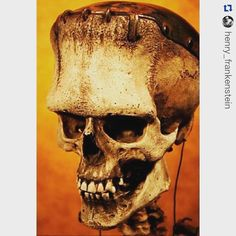 The Frankenstein monster skull recently unearthed in Vasaria Hungary. From @henry_frankenstein