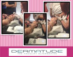 My experience with Dermatude - Dermatude's Meta Therapy is a skin rejuvenation treatment used for wrinkles, fine lines and damaged skin.