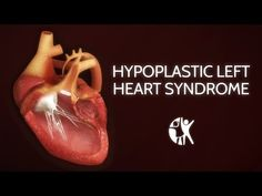 Hypoplastic left heart syndrome (HLHS) is one of the most complex cardiac defects seen in the newborn and remains probably the most challenging to manage of all congenital heart defects. It is one of a group of cardiac anomalies that can be grouped together under the description single ventricle defects.