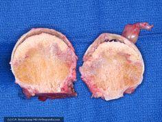 Osteonecrosis of the Femoral Head - OrthopaedicsOne Articles -OrthopaedicsOne