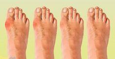5 способов избавиться от косточки на ноге без помощи хирурга