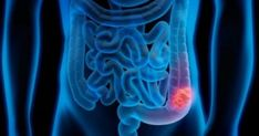 Using the Microbiome to Diagnose Colon Cancer Jessica Smith, Colon Cancer Symptoms, Best Oral, Alternative Treatments, Cancer Awareness, Depression, Small Study, Peeling, Women Health