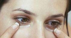 Voici comment cette recette maison a la capacité d'éclaircir la peau en dessous de vos yeux et vous faire paraître jeune et en pleine forme.