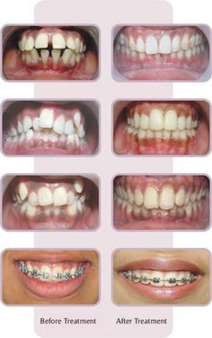Braces do great things!! The same results will happen to you! At Aubert and Nguyen Orthodontics, we actually have pinboards of Before and After photos of our patients!