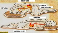 Everyone knows that sleep is very important for maintaining a good physical and mental health. There are several sleeping positions, your front, your back, your left side, and your right side. Benefits Of Sleep, Health Benefits, Health Tips, Health And Wellness, Mental Health, Health Chart, Colon Health, Sleep On Left Side, Left Side Sleeping