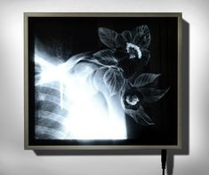 Available for sale from Officine dell'Immagine, Nunzio Paci, X-Ray 4 Scratching on X-Ray mounted in lightbox, 23 × 27 × 4 cm Nunzio Paci, Lightbox Art, Alternative Photography, Background Pictures, Awakening, Still Life, Flora, Moose Art, Artwork