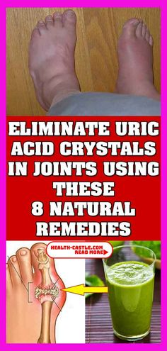 Just Eliminate Uric Acid Crystal In Your Joints With These Eight Natural RemediesToday we will present you the best natural remedies that will help you eliminate uric acid crystals in your joints.Due to the accumulation of crystals and uric acid in the jo Wellness Tips, Health And Wellness, Health Care, Health And Beauty, Natural Health Tips, Natural Health Remedies, Natural Healing, Natural Cures, Types Of Arthritis
