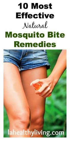 10 Most Effective Natural Mosquito Bite Remedies