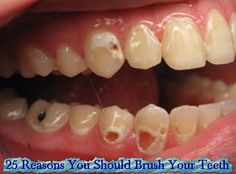 Soda addiction as bad for your teeth as meth or crack: study Teeth Health, Dental Health, Healthy Teeth, Oral Health, Healthy Food, Soda Addiction, Tooth Decay Treatment, Dental Braces, Teeth Braces