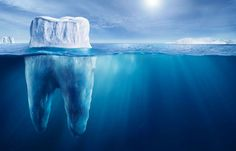 Tooth iceberg.  Perhaps a new analogy to use for my patients???